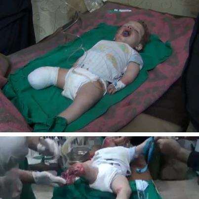 Syria - Children - Injured Child with Amputated Leg - World - 28-1-2013